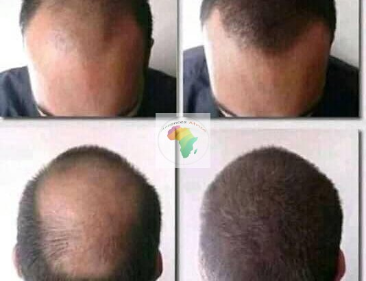 Huile essentielle pour la croissance des cheveux